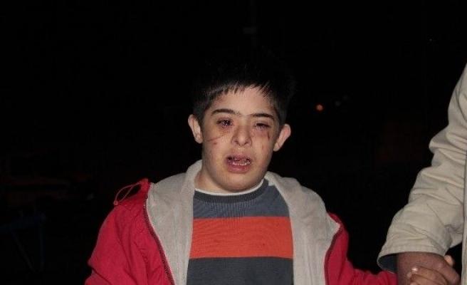 Down Sendromlu Çocuk Okuldan Eve Darp Edilmiş Halde Döndü