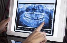 Eksik Dişlerinizi Tamamlamak İçin 6 Ayınız Var!