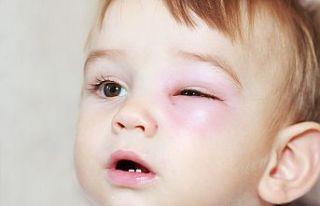 Çocuklarda göz enfeksiyonlarına dikkat