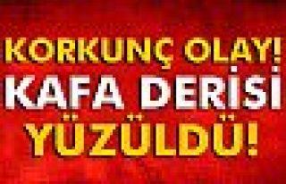 Yozgat'ta korkunç ölüm